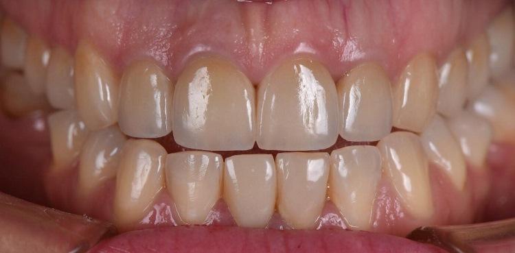 Керамические виниры и коронки всех зубов верхней челюсти