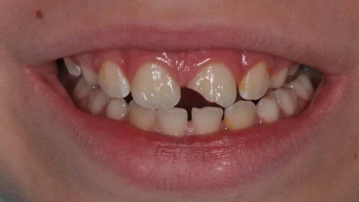 Травма зуба в детском возрасте