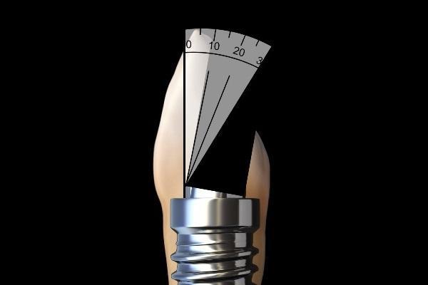 Угловой дизайн имплантата для решения проблем с винтовой фиксацией