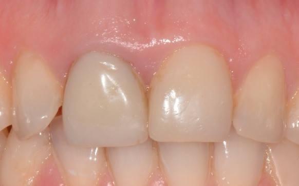 Поэтапная реабилитация зуба 11