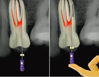 Клинические указания применения ProTaper Next