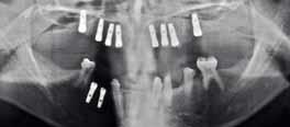 Ангидротическая эктодермальная дисплазия. Успехи современного естествознания Синдром криста сименса