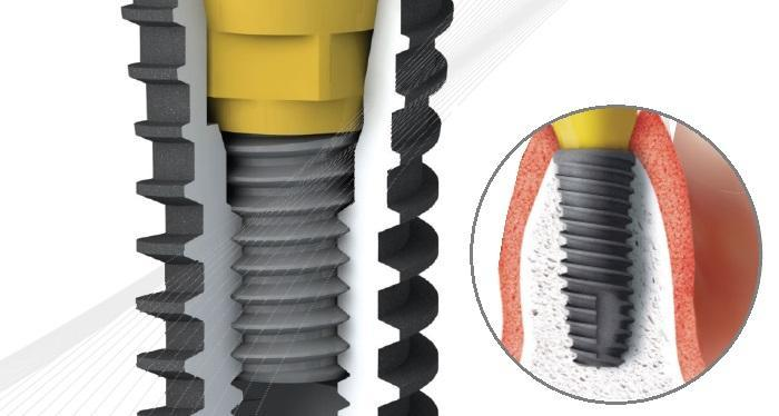Экспериментальное исследование осевого смещения абатмента имплантата при затягивании клинического винта у имплантатов с коническим соединением