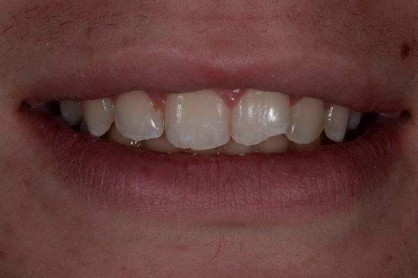 Травматический скол зуба 2.1 и кариес зуба 1.2