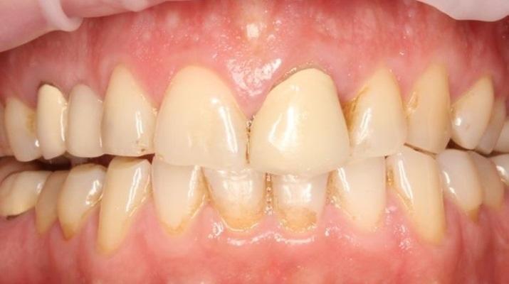 Удаление ретинированного клыка верхней челюсти с одномоментной имплантацией