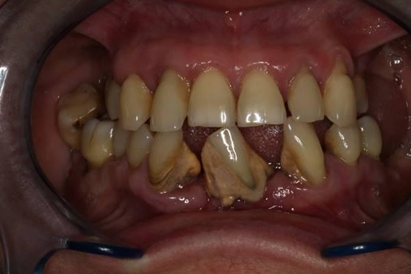 Реабилитация беззубых челюстей условно-съемными протезами