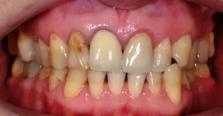 Ортодонтическое лечение и эстетическая реабилитация пациента с помощью керамических коронок и виниров на фронтальных зубах верхней челюсти