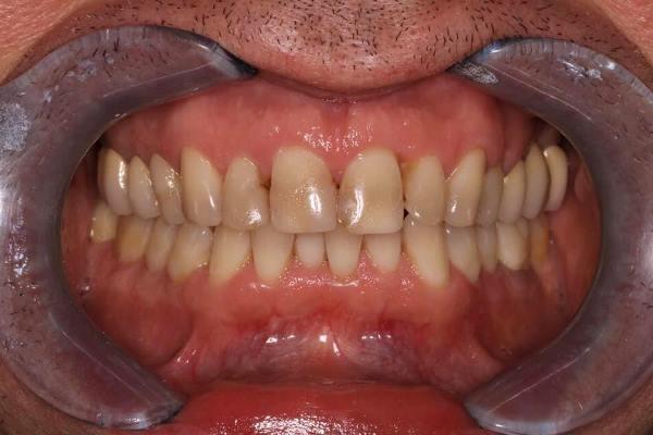 Эстетическая реабилитация винирами с предварительной ортодонтической подготовкой нижней челюсти