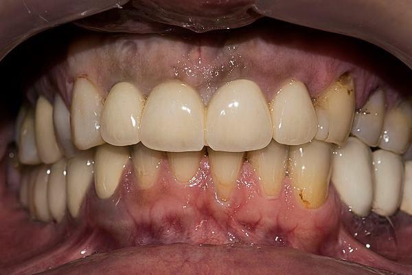 Несостоятельность 12 зуба по причине вторичного кариеса