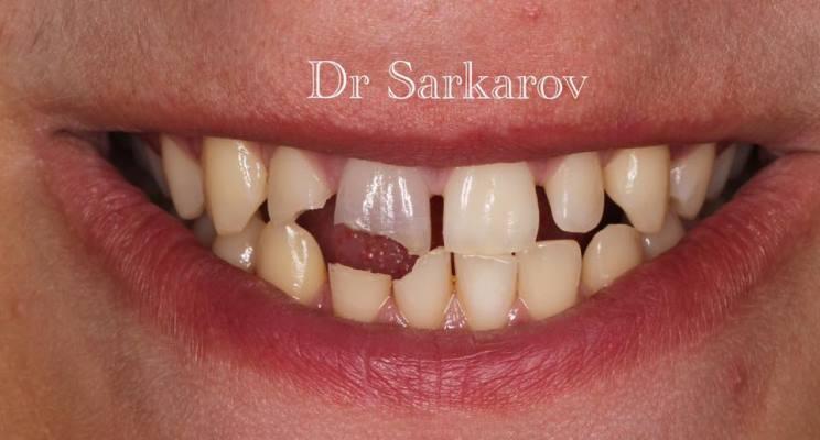 Травма передних зубов верхней и нижней челюсти