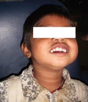 Анкилоз ВНЧС у 4-х летнего ребенка: трехмерное планирование лечения