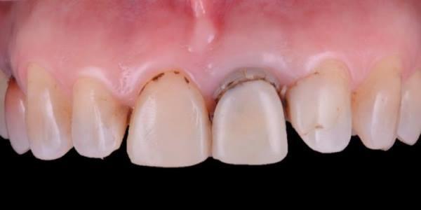 Зуб 21 подлежит удалению в следствии перелома корня