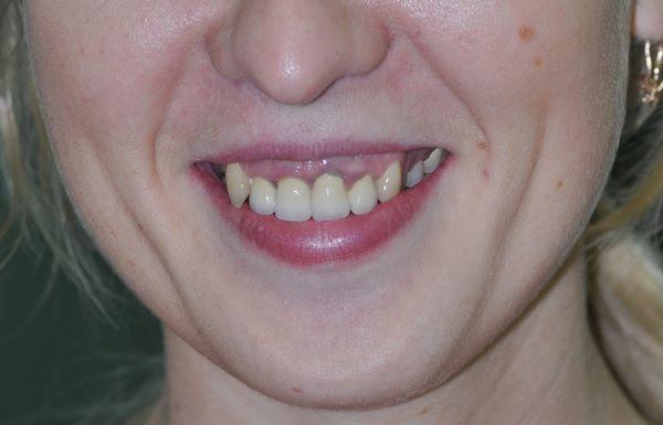 Восстановление резцов верхней челюсти на имплантатах при высокой линии улыбки