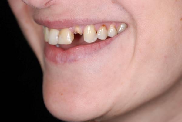 Удаление разрушенного 22 зуба с одномоментной имплантацией и нагрузкой