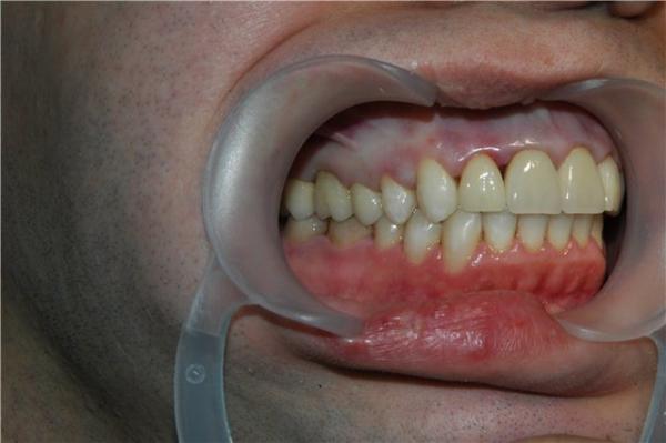 силиконовые виниры на зубы купить