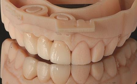 Цифровая стоматология: золотой век компьютерной диагностики и планирования лечения