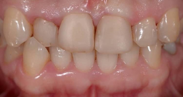 Прямая реставрация фронтальных зубов верхней челюсти с коррекцией цвета, формы и положения