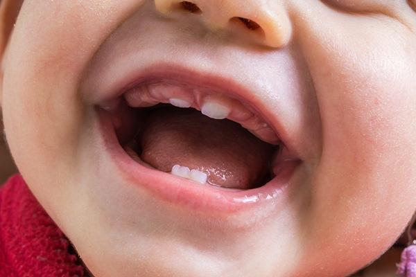 Редкий случай множественных дермоидных кист на дне ротовой полости у младенца