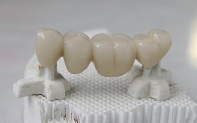 Могут ли современные технологии CAD/CAM обеспечить более точное краевое прилегание каркаса коронки к зубу?