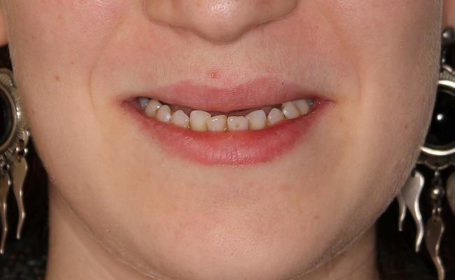 Тотальное восстановление зубов на имплантатах