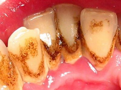 Зубной камень помогает открывать историю прошлого