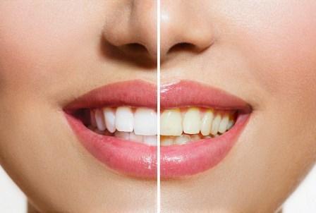 Топ-5 натуральных средств для отбеливания зубов