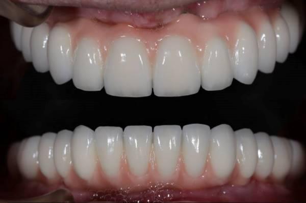 Тотальная реконструкция зубных рядов металлокерамическими зубными протезами с опорой на имплантаты Биогоризонт