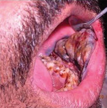 Первичная злокачественная меланома в полости рта
