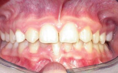 Ортодонтическое лечение врожденного отсутствия латеральных резцов: клинический случай