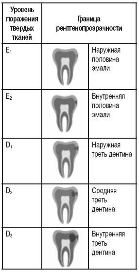 Рентгенологическая классификация проксимальных кариозных поражений по их глубине (Mejare I., 1999)