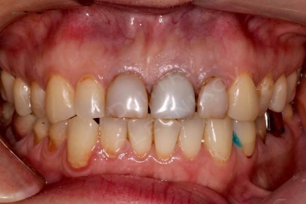 Устранение дисколорита фронтальных зубов при помощи E.max реставраций