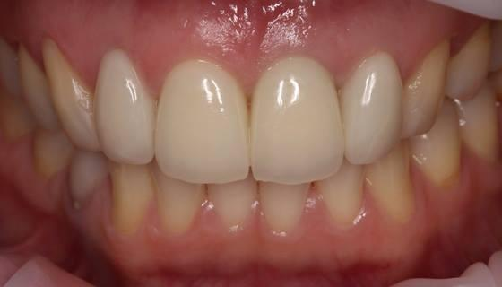 Сочетанное протезирование на имплантате и своих зубах в эстетически значимой зоне