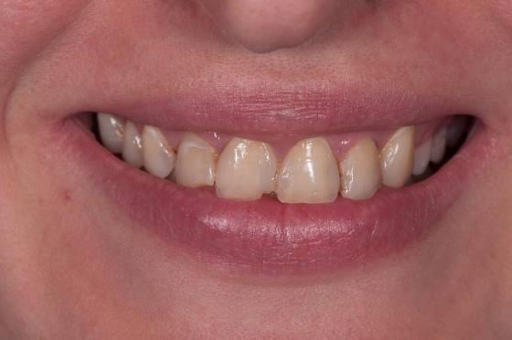 Восстановление 6 передних зубов E-max после ортодонтического лечения