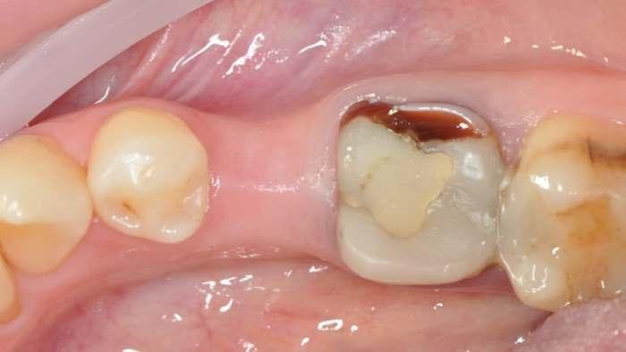 Клинический случай отсроченной и одномоментной имплантации в боковом отделе нижней челюсти