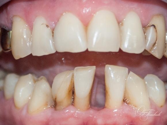 Компромисный случай адгезивного шинирования с восстановлением включенного дефекта зубного ряда