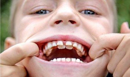 У ирландского мальчика начал расти второй ряд зубов