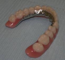 зубной протез с опорой на импланты