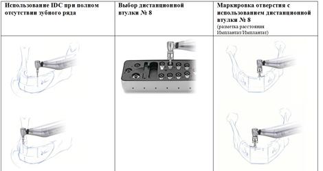 клиническое применение комплекта IDC