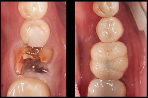 Одномоментная имплантация в область 46 зуба с индивидуальным формирователем десны