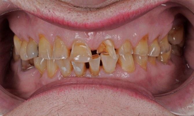 Восстановление зубов с использованием техники литья под давлением при помощи прозрачного силиконового ключа