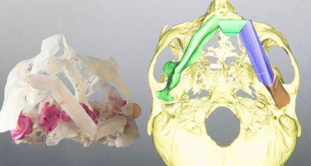 Использование 3D-принтеров изменило подход к челюстно-лицевой хирургии и исследованиям в области стоматологии
