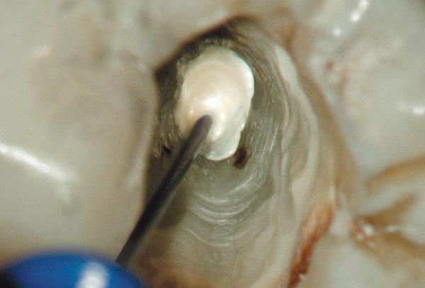 Длительная экспозиция гидроксида кальция во фронтальных зубах верхней челюсти (клинический случай)