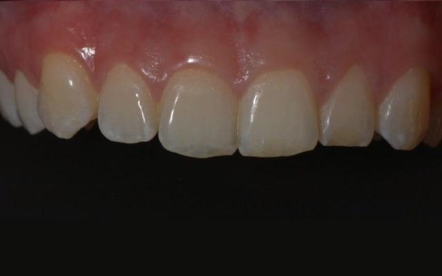 Устранение эстетического дефекта фронтальных зубов вследствие травмы