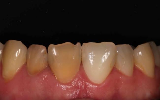 Внутрикоронковое отбеливание и реставрация фронтальной группы зубов