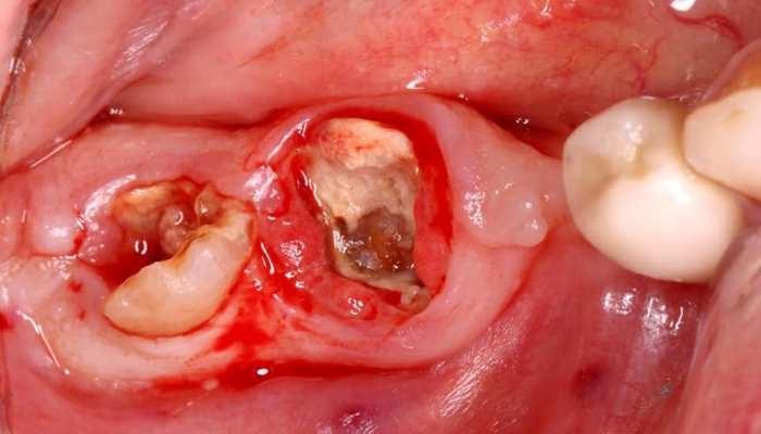 Эстетическая реабилитация жевательной группы зубов на нижней челюсти с использованием дентальных имплантатов
