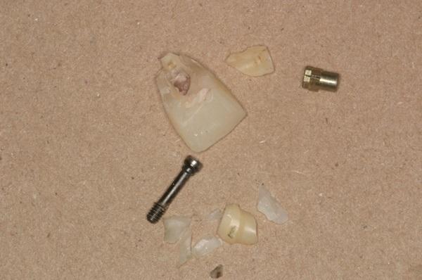 Протетические осложнения несъемных конструкций с опорой на дентальные имплантаты