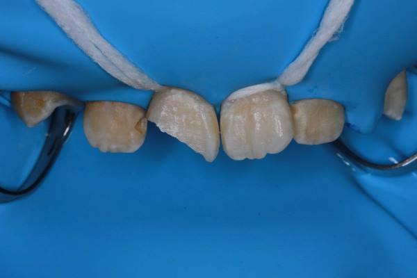 Травма зуба 1.1