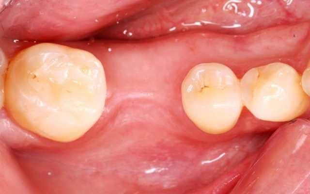Имплантация с одномоментной нагрузкой и восстановлением десневого контура