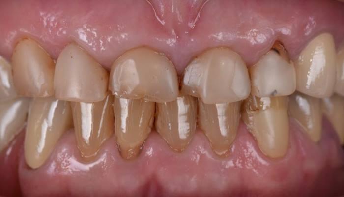 Реставрация зубов 1.3 - 2.2 композитным материалом Premise