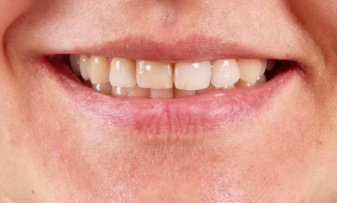Одномоментная имплантация 11 зуба и эстетическое протезирование центральных зубов верхней челюсти